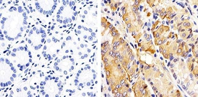 Immunohistochemistry (Formalin/PFA-fixed paraffin-embedded sections) - Anti-RAC1 + Cdc42 (phospho S71) antibody (ab5482)