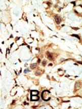 Immunohistochemistry (Formalin/PFA-fixed paraffin-embedded sections) - Anti-Insulin Receptor antibody (ab5500)