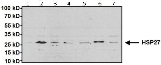 Western blot - Anti-Hsp27 antibody (ab5579)