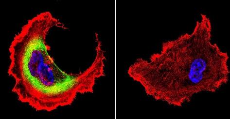 Immunocytochemistry/ Immunofluorescence - Anti-Hsp27 antibody (ab5579)