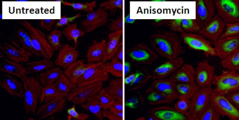 Immunocytochemistry/ Immunofluorescence - Anti-Hsp27 (phospho S15) antibody (ab5581)