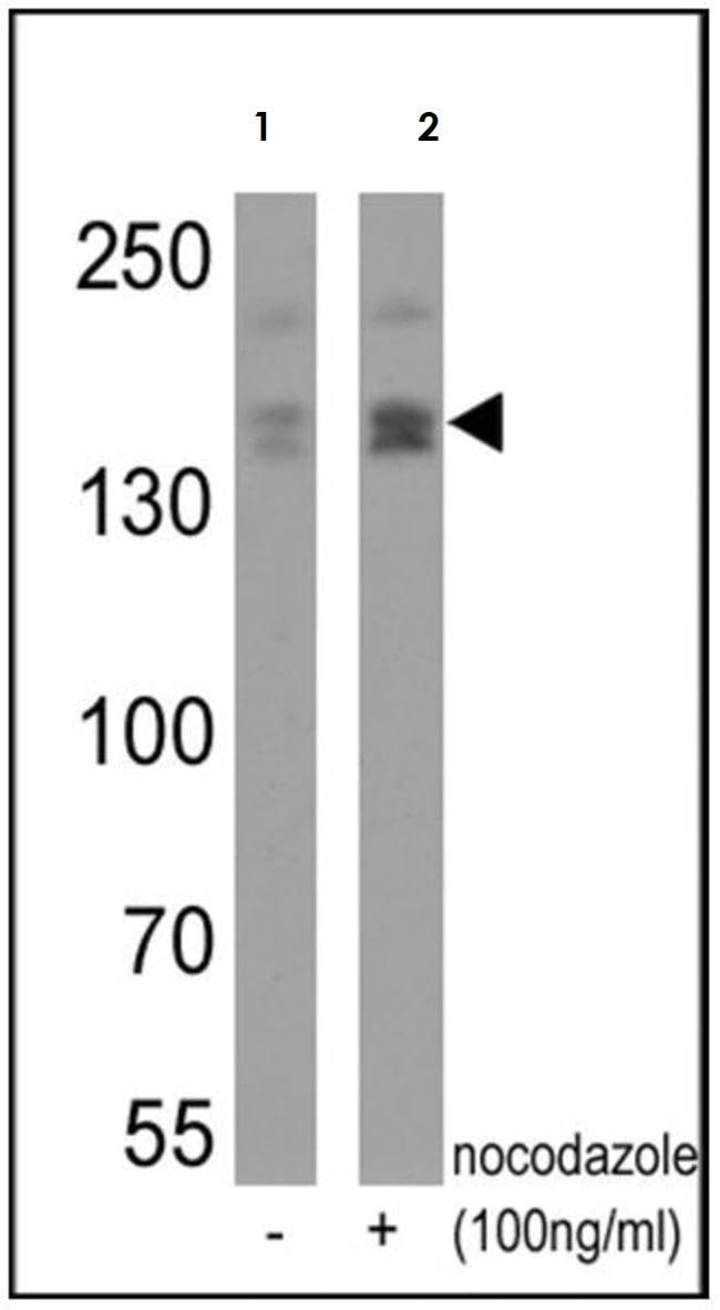 Western blot - Anti-nNOS (neuronal) (phospho S1417) antibody (ab5583)