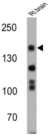 Western blot - Anti-nNOS (neuronal) antibody (ab5586)
