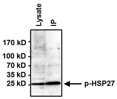 Immunoprecipitation - Anti-Hsp27 (phospho S85) antibody (ab5594)