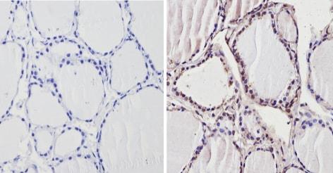 Immunohistochemistry (Formalin/PFA-fixed paraffin-embedded sections) - Anti-Thyroid Hormone Receptor beta antibody - ChIP Grade (ab5622)