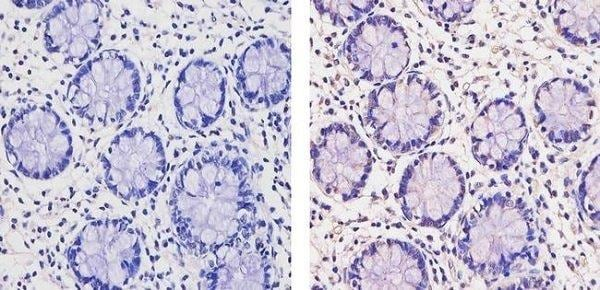 Immunohistochemistry (Formalin/PFA-fixed paraffin-embedded sections) - Anti-Thyroid Hormone Receptor beta antibody - ChIP Grade (ab5622)