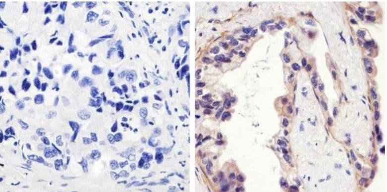 Immunohistochemistry (Formalin/PFA-fixed paraffin-embedded sections) - Anti-EGFR (phospho Y1173) antibody (ab5652)
