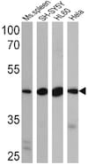 Western blot - Anti-BACE2  antibody (ab5670)