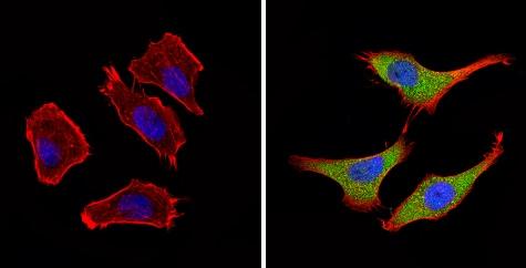 Immunocytochemistry/ Immunofluorescence - Anti-BACE2  antibody (ab5670)