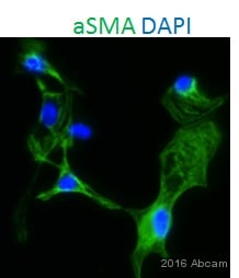 Immunocytochemistry/ Immunofluorescence - Anti-alpha smooth muscle Actin antibody (ab5694)