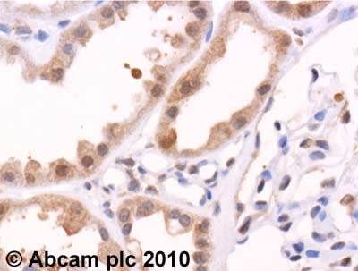 Immunohistochemistry (Formalin/PFA-fixed paraffin-embedded sections) - Anti-MMP7 antibody (ab5706)