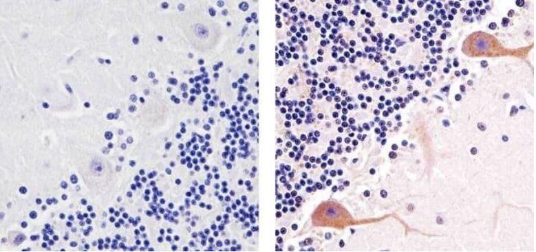 Immunohistochemistry (Formalin/PFA-fixed paraffin-embedded sections) - Anti-PKC gamma (phospho T674) antibody (ab5797)