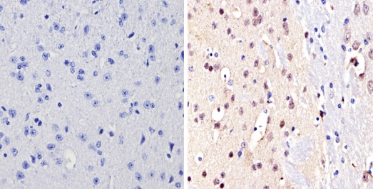 Immunohistochemistry (Formalin/PFA-fixed paraffin-embedded sections) - Anti-NCoR2 antibody (ab5802)