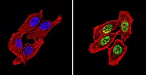 Immunocytochemistry/ Immunofluorescence - Anti-NCOR2/SMRT antibody (ab5802)