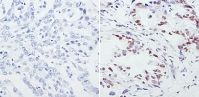Immunohistochemistry (Formalin/PFA-fixed paraffin-embedded sections) - Anti-CREB + ICER antibody (ab5803)