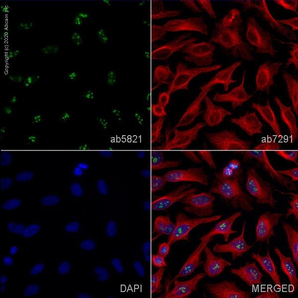 Immunocytochemistry/ Immunofluorescence - Anti-Fibrillarin antibody - Nucleolar Marker (ab5821)