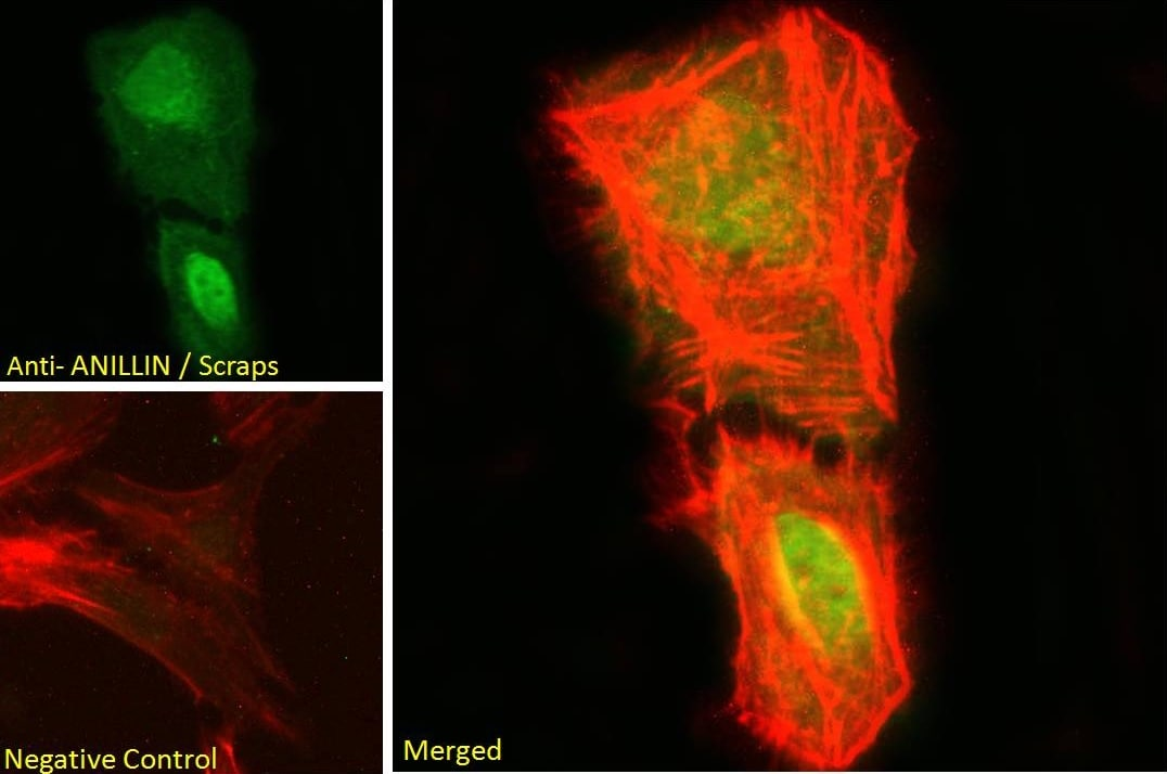 Immunocytochemistry/ Immunofluorescence - Anti-Anillin antibody (ab5910)