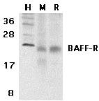 Western blot - Anti-BAFF-R antibody (ab5965)