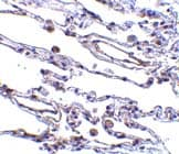 Immunohistochemistry (Formalin/PFA-fixed paraffin-embedded sections) - Anti-CIKS antibody (ab5973)