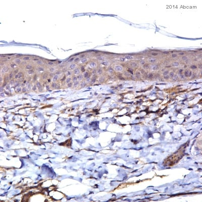 Immunohistochemistry (Formalin/PFA-fixed paraffin-embedded sections) - Anti-IL21 antibody (ab5978)