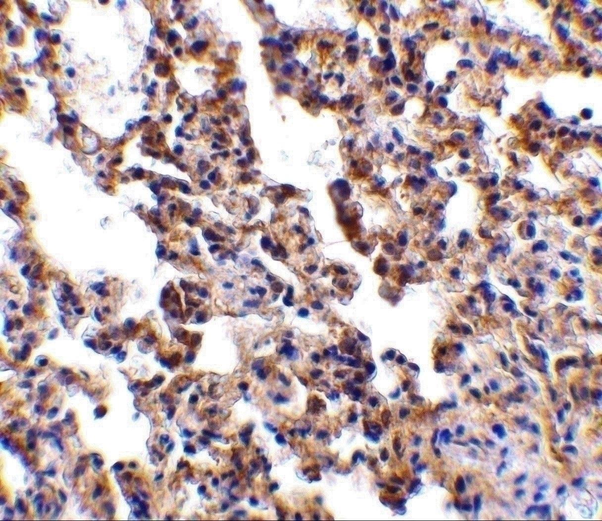 Immunohistochemistry (Formalin/PFA-fixed paraffin-embedded sections) - Anti-IL-21R antibody (ab5980)