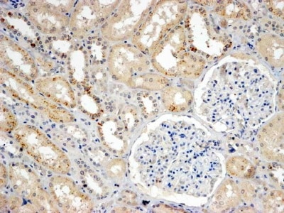 Immunohistochemistry (Formalin/PFA-fixed paraffin-embedded sections) - Anti-SNX8 antibody (ab5988)
