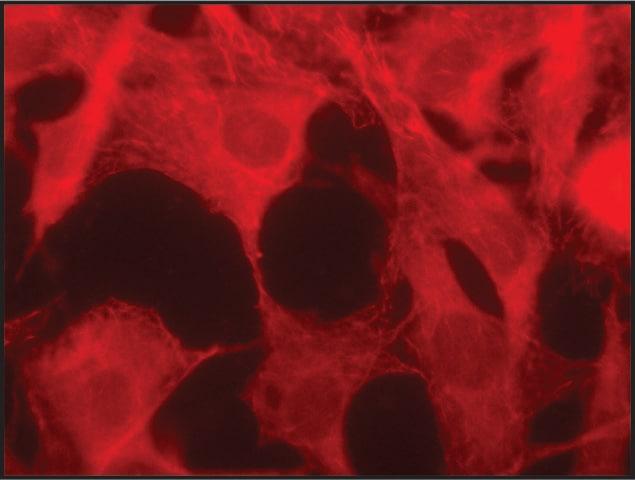 Immunocytochemistry/ Immunofluorescence - Anti-MAPRE1 antibody (ab50188)