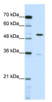 Western blot - Anti-ZNF485 antibody (ab50559)