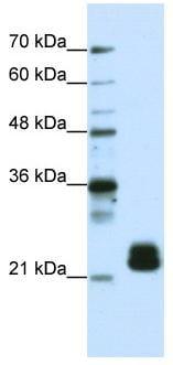 Western blot - Anti-TMED4 antibody (ab50634)