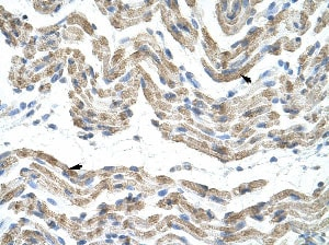 Immunohistochemistry (Formalin/PFA-fixed paraffin-embedded sections) - Anti-TRA2B antibody (ab50846)
