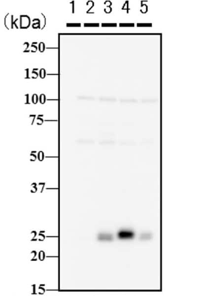 Western blot - Anti-Twist antibody [Twist2C1a] - ChIP Grade (ab50887)