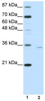 Western blot - Anti-OTP antibody (ab50897)