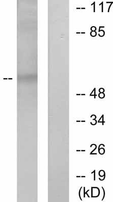 Western blot - ICAM1 (phospho Y512) antibody (ab51033)