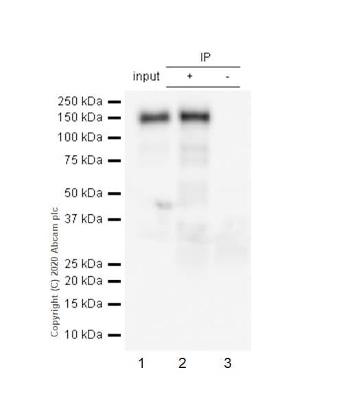 Immunoprecipitation - Anti-pan Cadherin antibody [EPR1792Y] - Intercellular Junction Marker (ab51034)