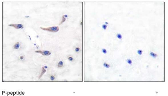 Immunohistochemistry (Formalin/PFA-fixed paraffin-embedded sections) - Anti-MARCKS (phospho S162) antibody (ab51070)