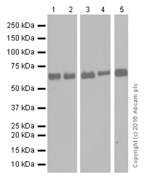 Western blot - Anti-MMP14 antibody [EP1264Y] (ab51074)