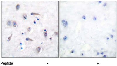 Immunohistochemistry (Formalin/PFA-fixed paraffin-embedded sections) - Anti-Amyloid Precursor Protein antibody (ab51135)