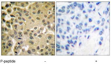 Immunohistochemistry (Formalin/PFA-fixed paraffin-embedded sections) - Anti-Smad3 (phospho S425) antibody (ab51177)