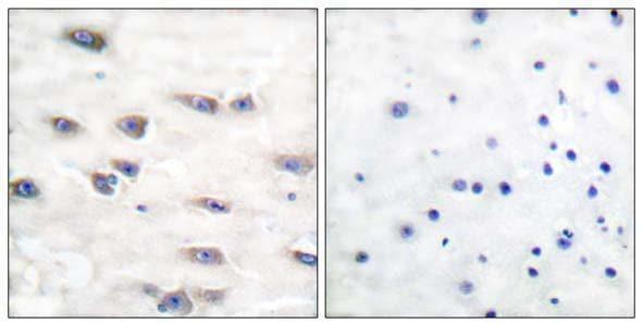 Immunohistochemistry paraffin embedded sections - Anti-TrkA (phospho Y791) antibody (ab51185)