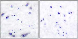 Immunohistochemistry (Formalin/PFA-fixed paraffin-embedded sections) - Anti-Tyrosine Hydroxylase antibody (ab51196)