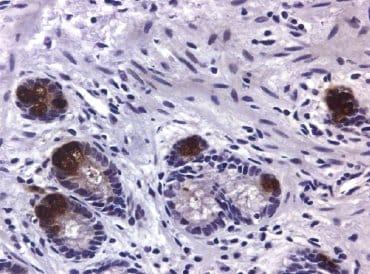 Immunohistochemistry (Paraffin-embedded sections) - MMP9 antibody [SB15c] (ab51203)