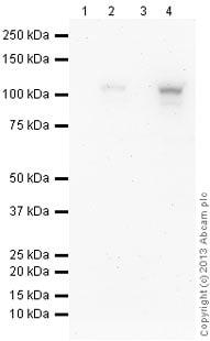 免疫印迹-抗HIF-1α抗体[EP1215Y](ab51608)