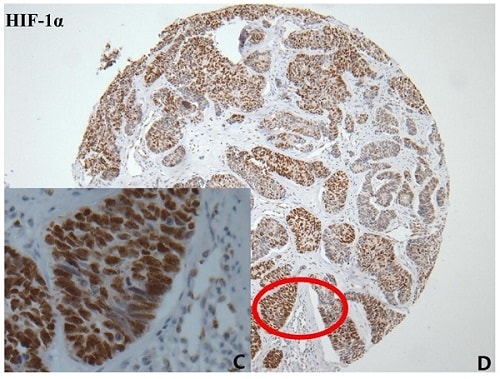 免疫组织化学(福尔马林/PFA固定石蜡切片)-抗HIF-1α抗体[EP1215Y](ab51608)