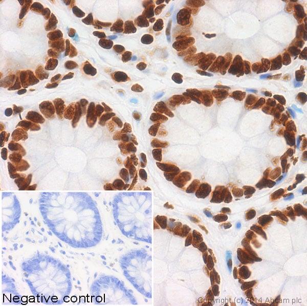免疫组织化学(福尔马林/PFA固定石蜡切片)-抗组蛋白H4(乙酰基K5)抗体[EP1000Y]-芯片级(ab51997)