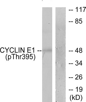 Western blot - Anti-Cyclin E1 (phospho T395) antibody (ab52195)