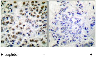 Immunohistochemistry (Formalin/PFA-fixed paraffin-embedded sections) - Anti-RNA polymerase II CTD repeat YSPTSPS (phospho S5) antibody (ab52208)