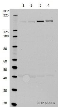 Western blot - Anti-CD11b antibody [EP1345Y] (ab52478)