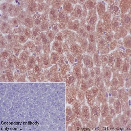 免疫组化(福尔马林/PFA固定石蜡切片)抗乳酸脱氢酶抗体[EP1566](AB52488)