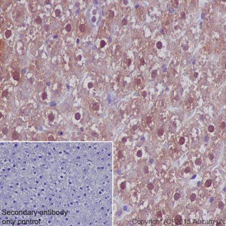 免疫组织化学(福尔马林/PFA固定石蜡切片)-抗乳酸脱氢酶抗体[EP1566Y](ab52488)