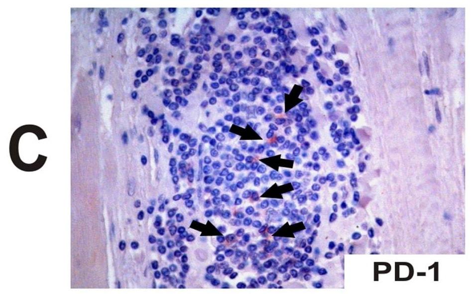 Immunohistochemistry (Formalin/PFA-fixed paraffin-embedded sections) - Anti-PD1 antibody [NAT105] (ab52587)
